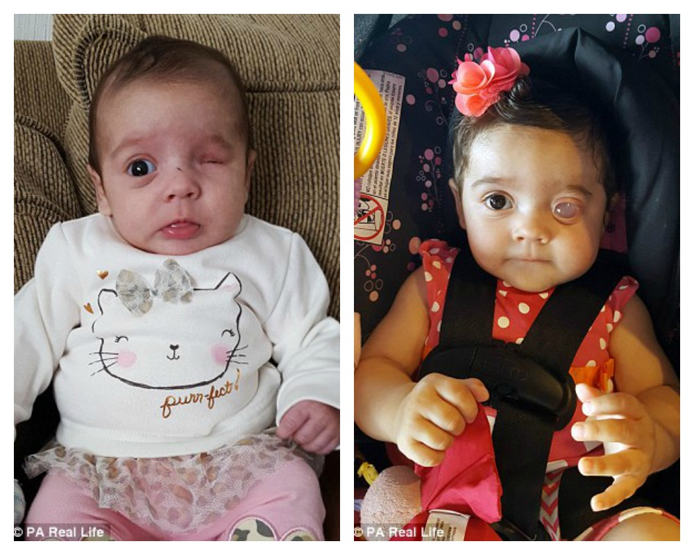 Ms Miller, 27, first learned about her daughter's condition during her 20  week scan, when doctors couldn't see anything where her left eye should be  bab4